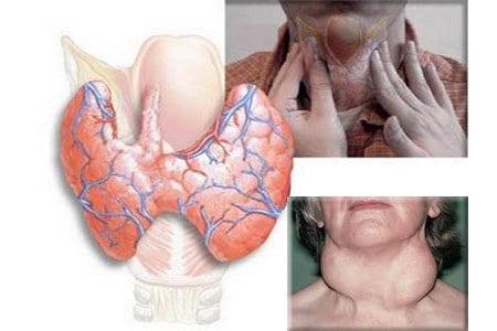 zob-uzlovoy-i-spermatogenez