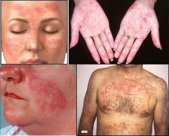 Волчанка болезнь симптомы и лечение