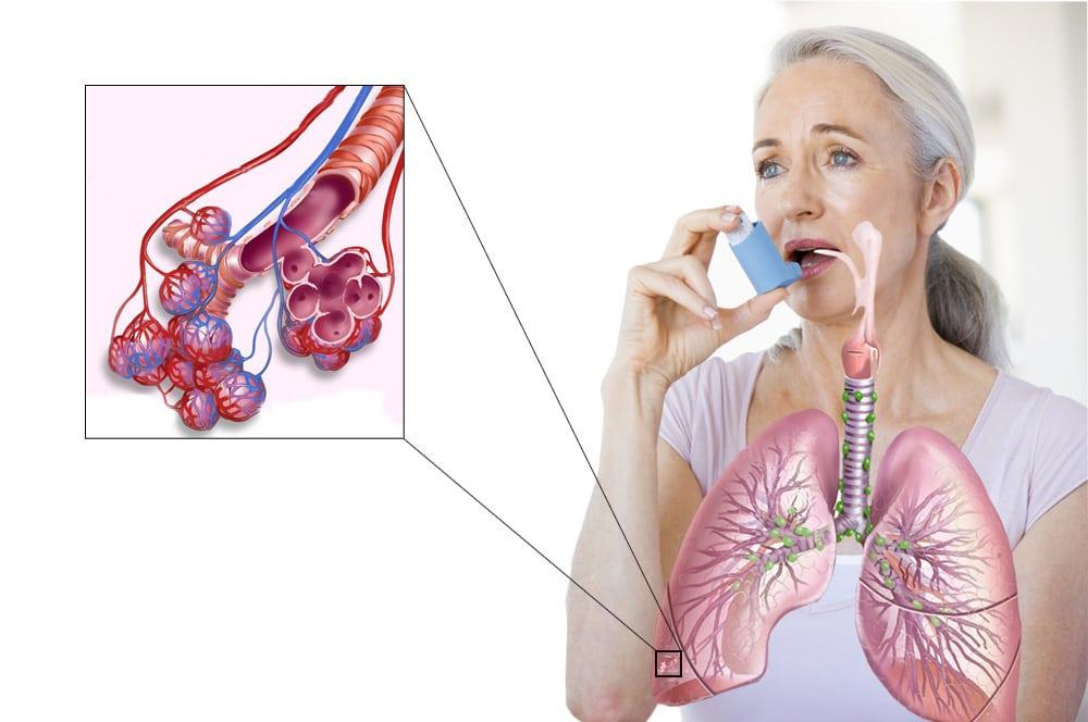 Бронхиальная астма - симптомы и лечение у взрослых