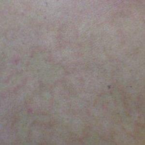 Виды лишая у человека: фото с названием и описанием лечения