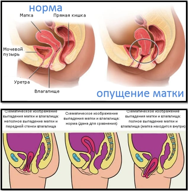 zalitaya-spermoy-posle-seksa