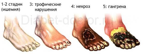 Сталиидии-стопы