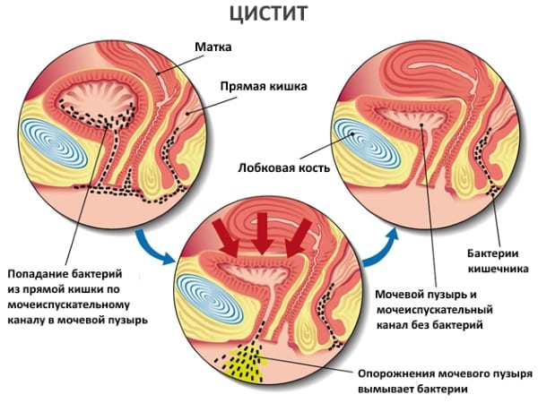 Лечение острого цистита у женщин лекарственными средствами