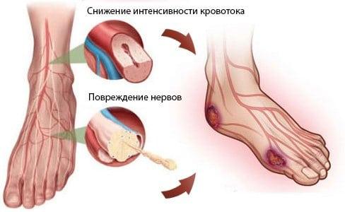 Диабетическая стопа (фото начальная стадия), причины, симптомы и лечение