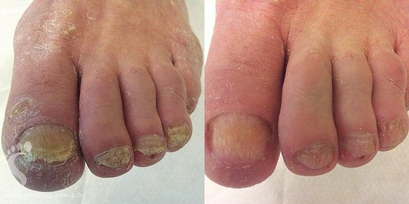 Противогрибковые средства для ногтей на ногах лоцерил