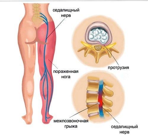 воспаление седалищного нерва лечение в домашних условиях