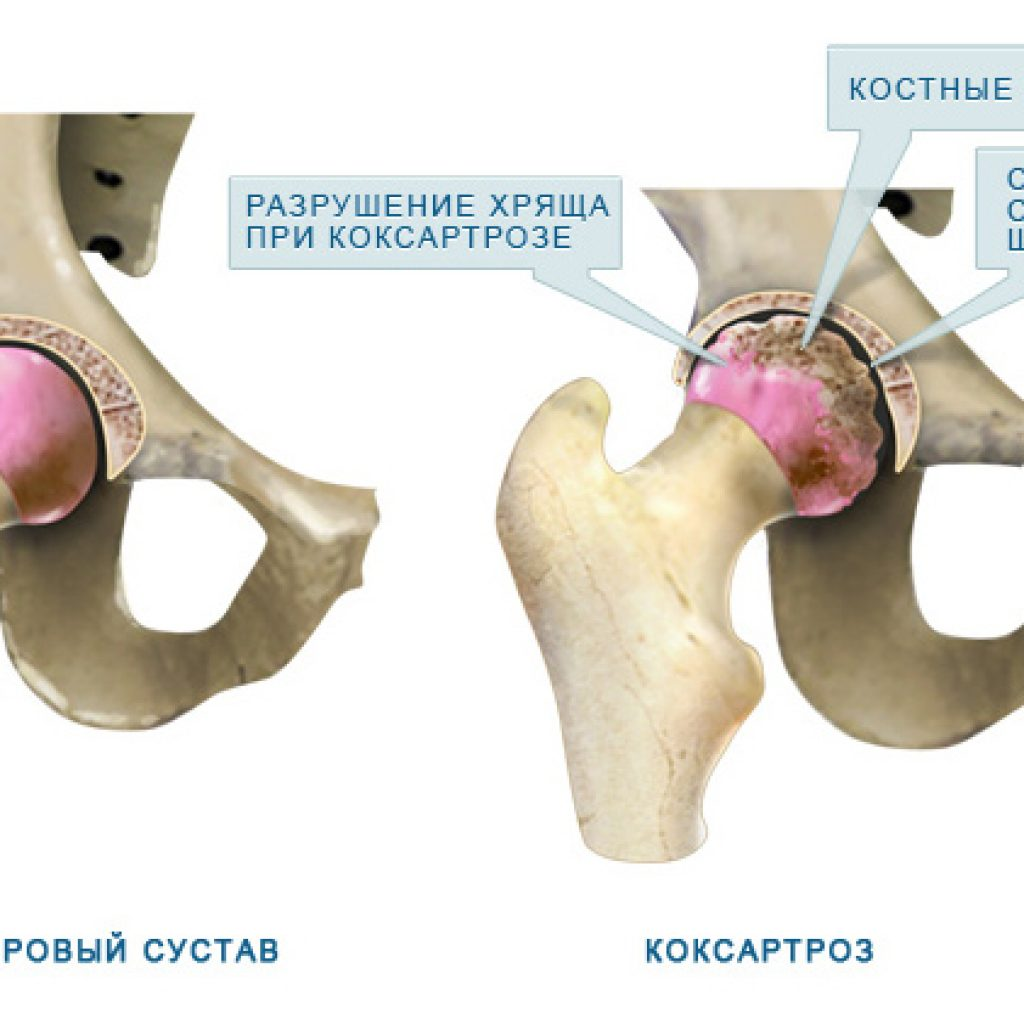 Коксартроз тазобедренный сустав лечение в домашних условиях 190