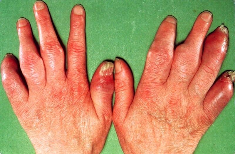 псориаз симптомы лечение фото