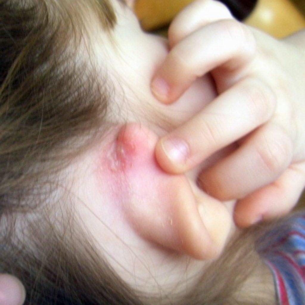 Корки за ушами у взрослых лечение