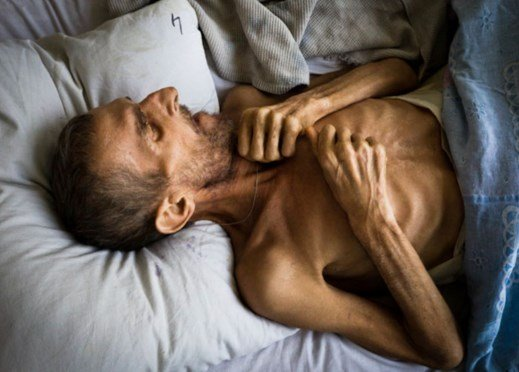Симптомы туберкулеза на ранней 24