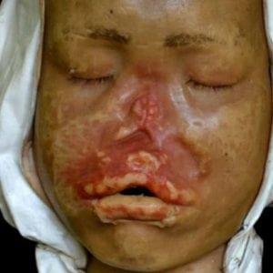 Как выглядит сифилитическая сыпь при сифилисе