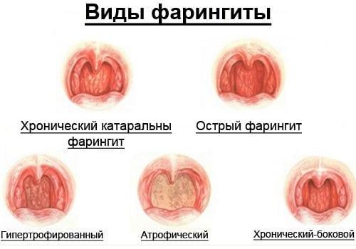Здоровый рот фото