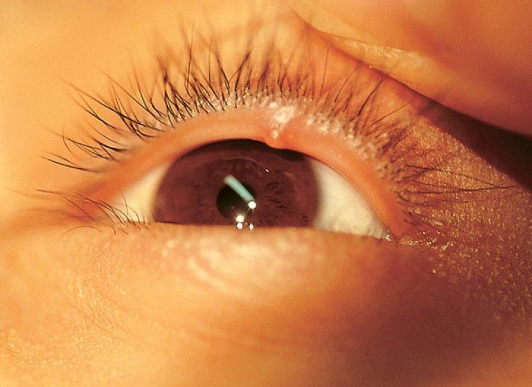 Как медикаментозно лечить ячмень на глазу на