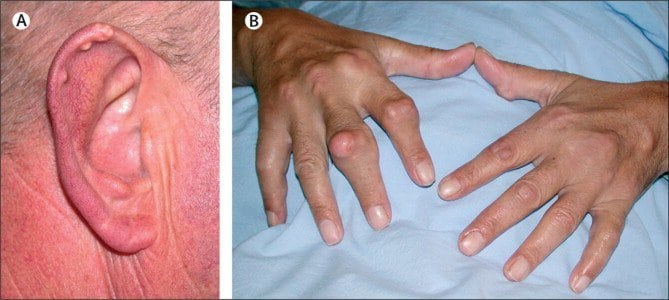 Повышенный уровень мочевой кислоты в крови, причины, симптомы, лечение