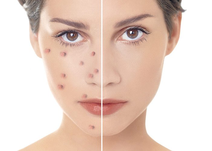 Прыщи на лице зоны какие болезни