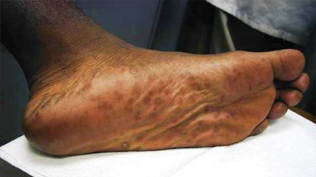 Сыпь при сифилисе - фото сифилитических высыпаний