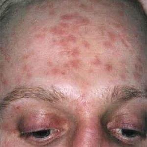 Сифилис как проводится лечение заболевания