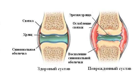 Почему хрустят суставы. Симптом болезни. Группа риска. Лечение