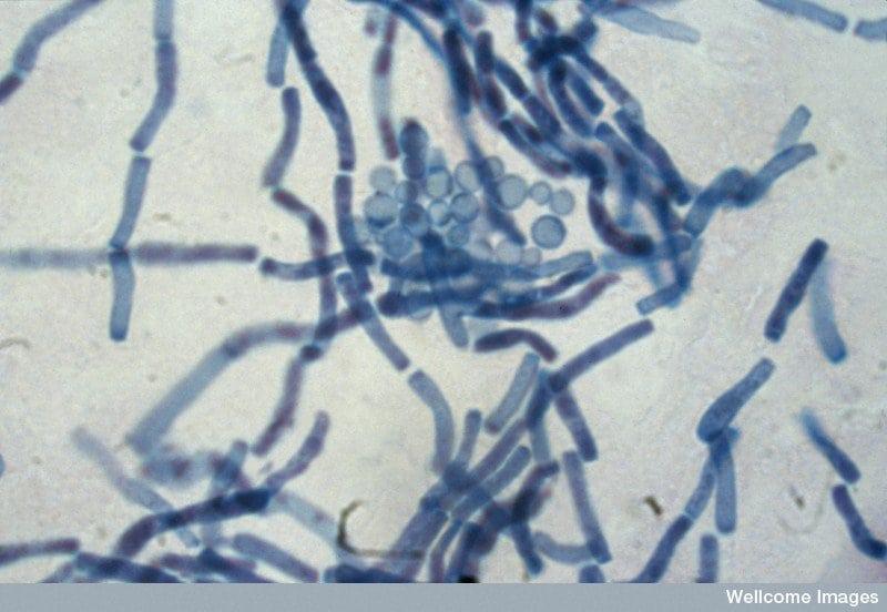 Себорейный дерматит под носом фото