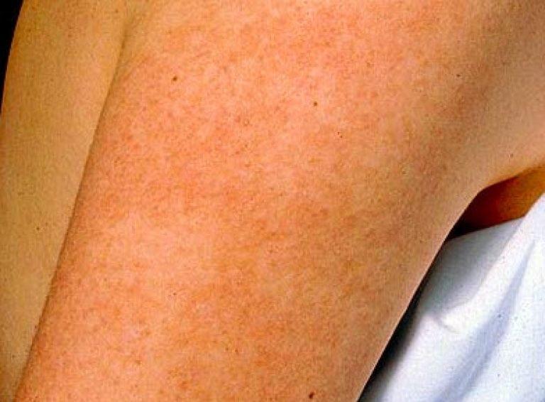 Нечувствительные участки на коже