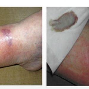 Трофические язвы на ногах фото