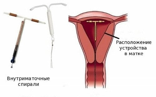 Спираль с гормонами при эндометриозе