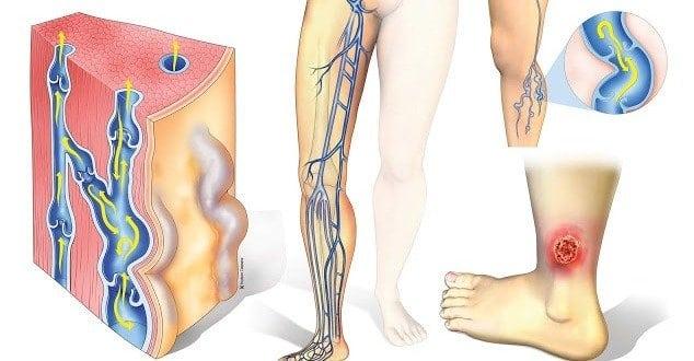 Трофическая язва на ноге: фото, начальная стадия