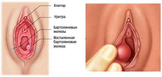 Бартолинит лечение в домашних условиях, симптомы заболевания