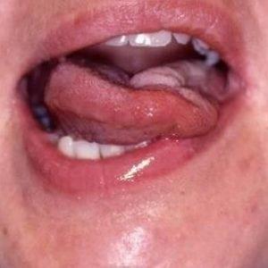 Бульбарный и псевдобульбарный синдром