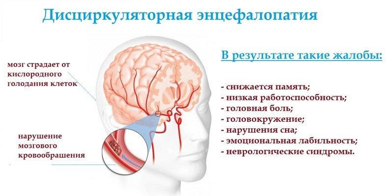 Что такое дисциркуляторная энцефалопатия (ДЭП) 2 степени: симптомы и лечение