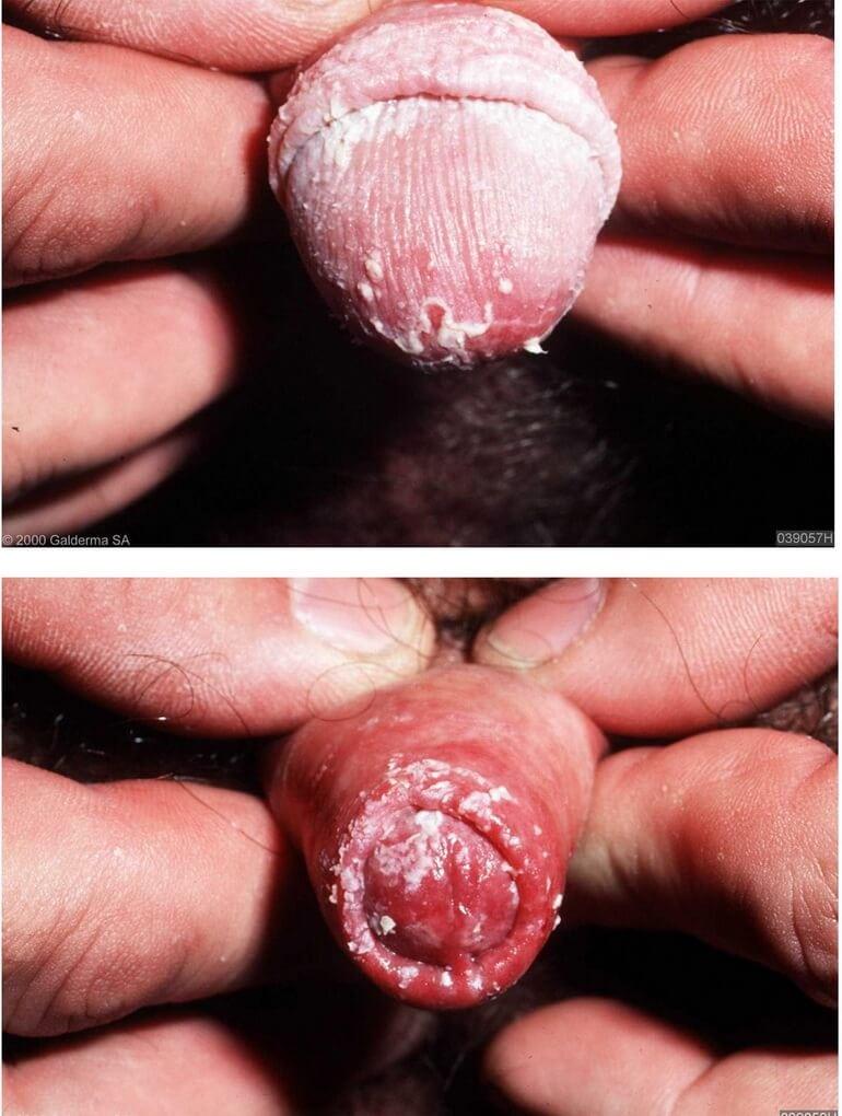 Фото молочницы у женщин и мужчин
