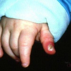 Артрит пальцев рук: причины возникновения, виды и лечение на разных стадиях заболевания