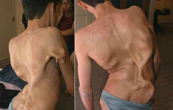 Воспаление мышц спины вдоль позвоночника как лечить