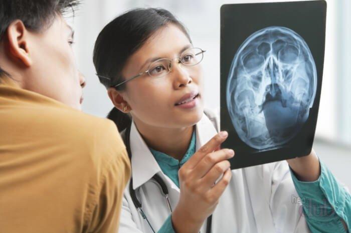 Внутричерепное давление - симптомы и лечение у взрослых