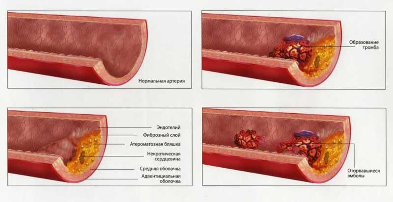 Атеросклероз нижних конечностей симптомы фото и лечение