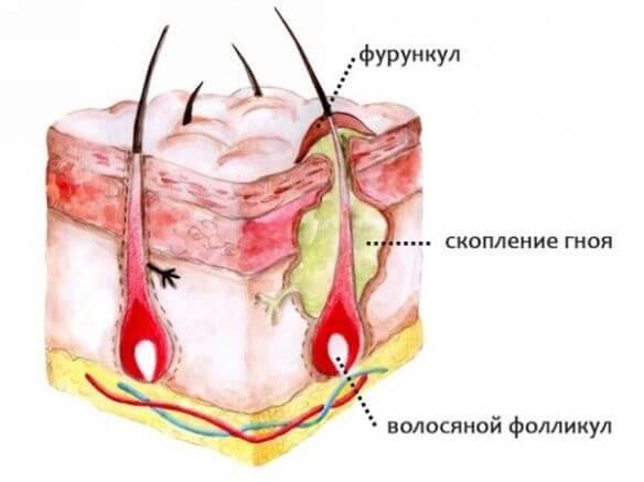 Чирьи на попе лечение