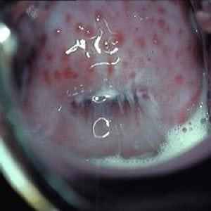 Кольпит у женщин (вагинит): что это такое, симптомы и лечение