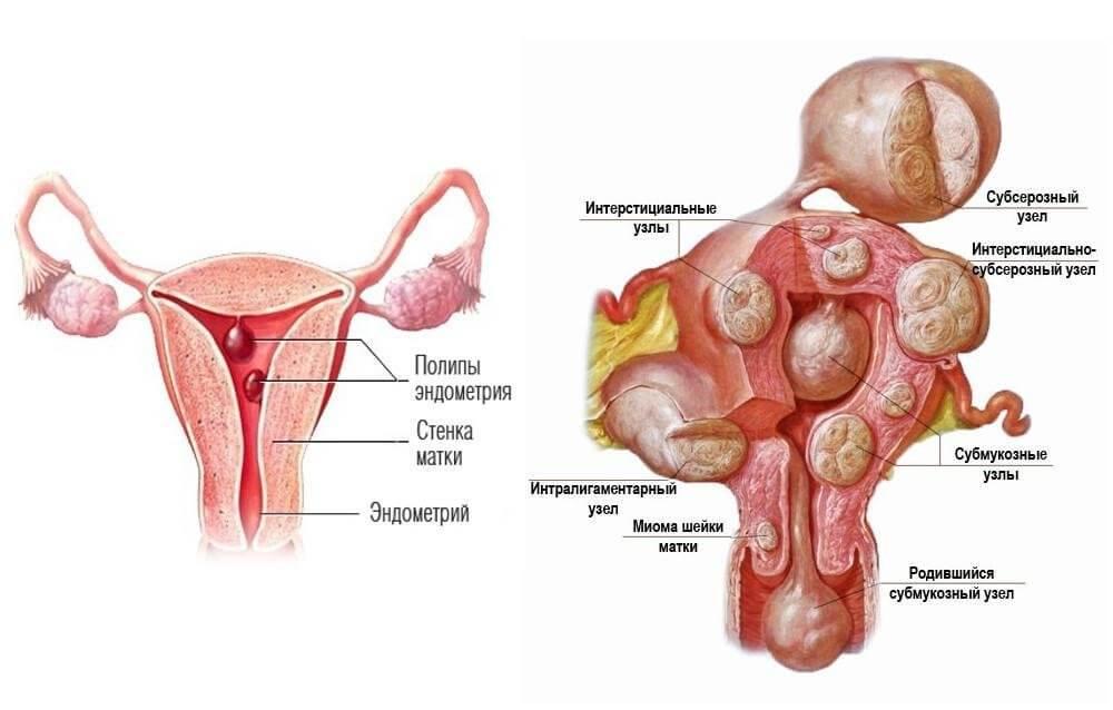 Может ли беременность вылечит эндометриоз