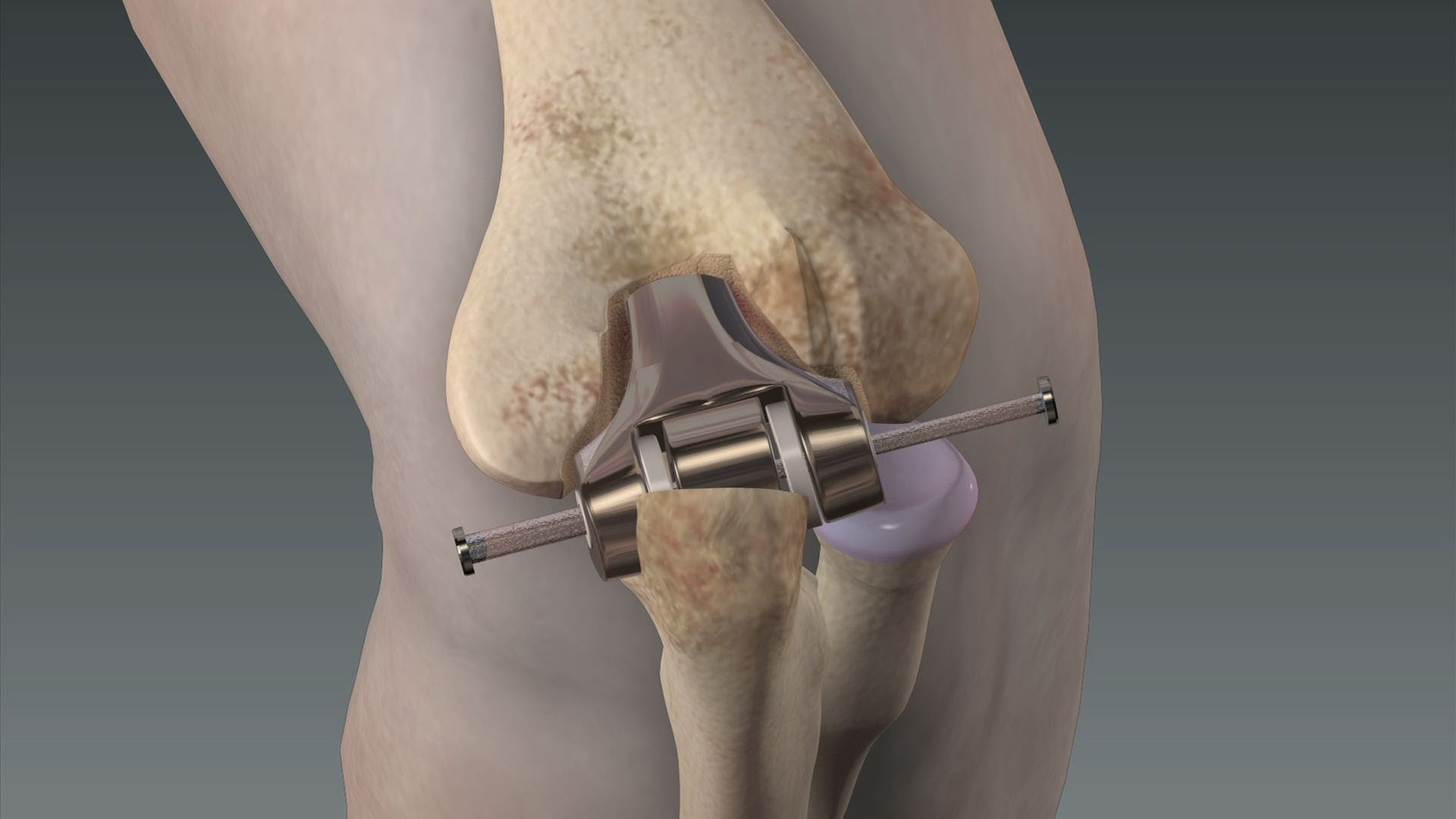 Гонартроз 3 степени лечение без операции