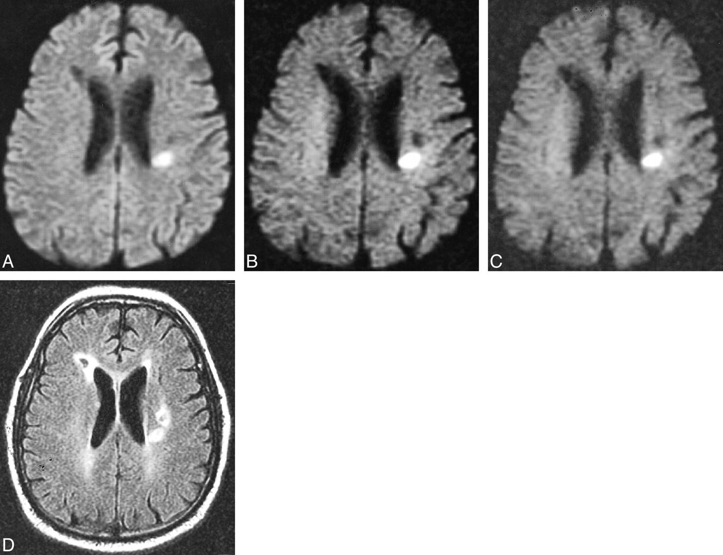 Ретроцеребеллярная киста головного мозга: опасность и лечение
