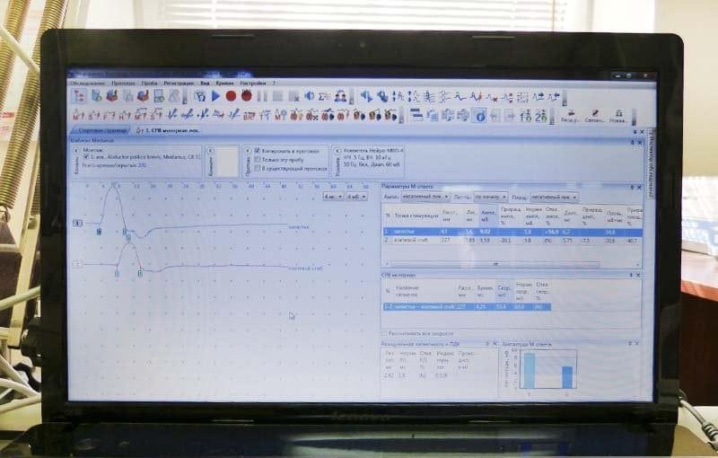 Электронейромиография верхних конечностей как делают