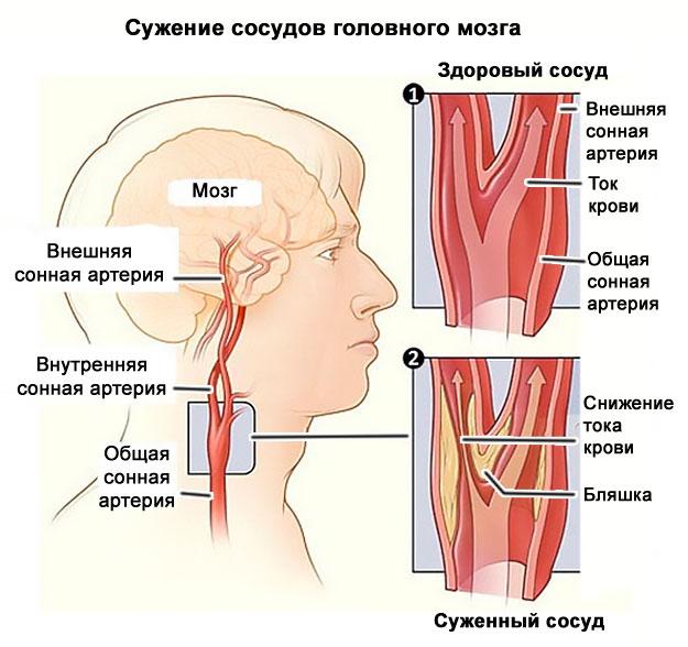 Как снять спазм сосудов головы и шеи, не допустив ошибок. Симптомы и методы лечения спазма сосудов головного мозга.