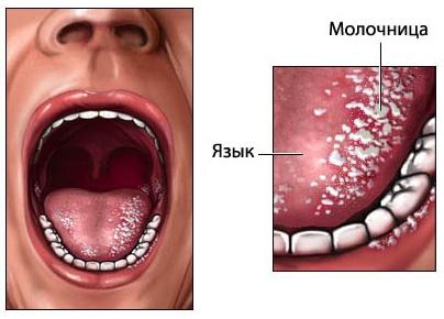 Молочница на языке у ребенка лечение