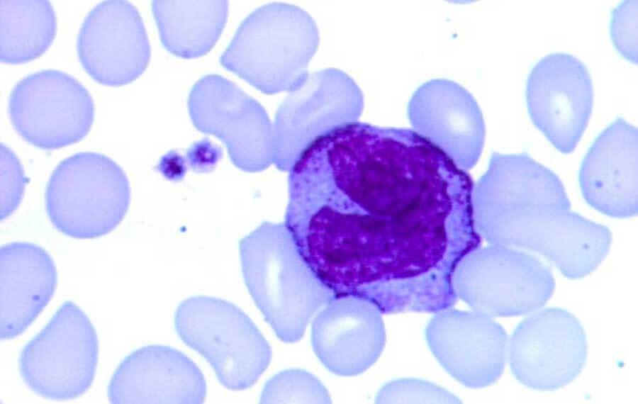 Моноциты повышены у взрослого, о чем это говорит? Причины высокого уровня моноцитов в крови у взрослых