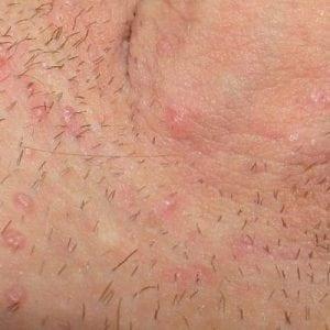 Чешется в паху после бритья