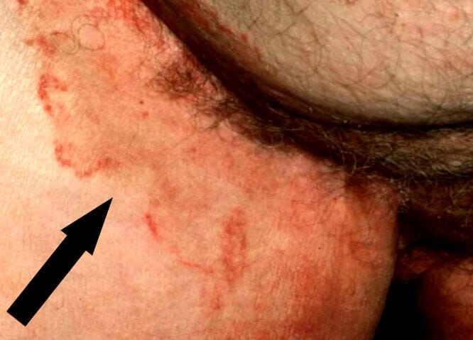 Причины и лечение зуда в паху у мужчин