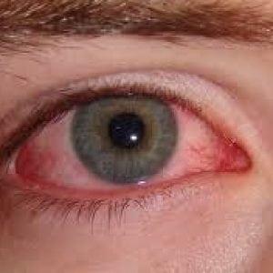 Болезнь шегрена симптомы и лечение