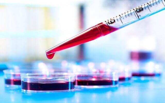 Гематокрит повышен: причины, что это значит