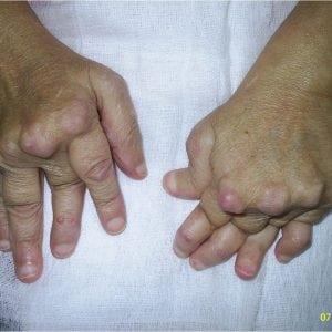 Ревматоидный артрит ног: симптомы и лечение воспаления суставов на пальцах ноги