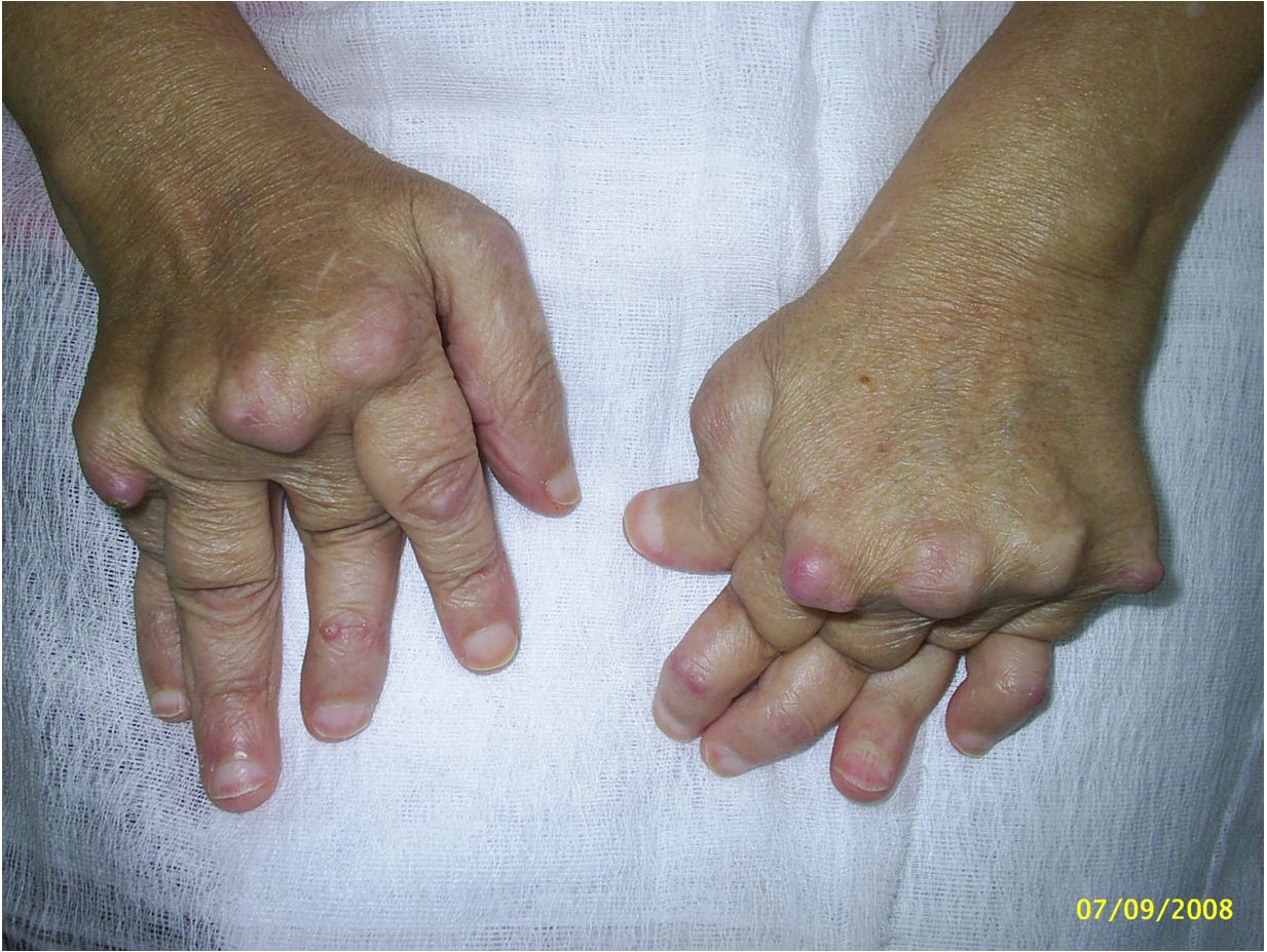 Артрит суставов степени признаки диагностика и лечение